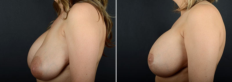 breast-augmentation-revision-with-lift-11473c-sobel