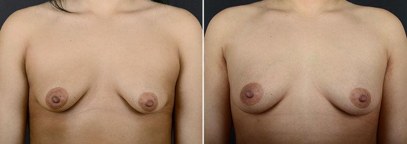 fat-transfer-breast-augmentation-11462a-sobel