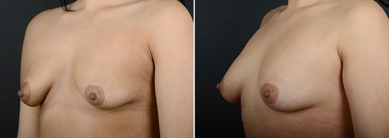 fat-transfer-breast-augmentation-11462b-sobel