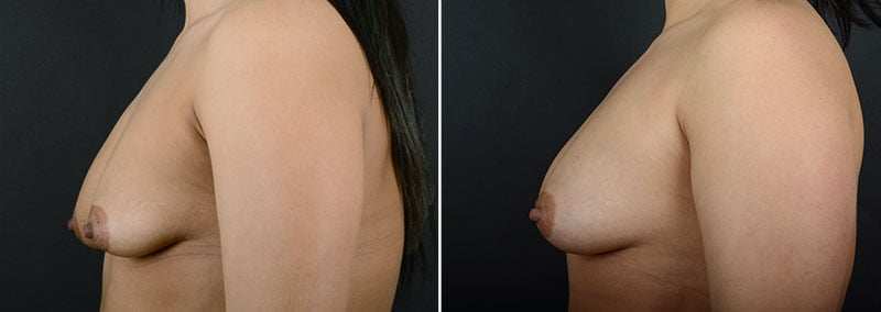 fat-transfer-breast-augmentation-11462c-sobel