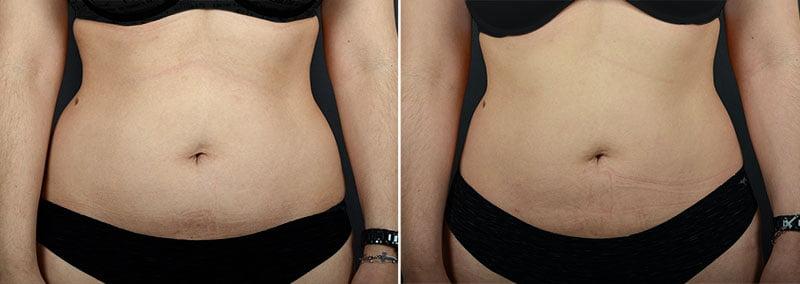 fat-transfer-buttocks-11361a-sobel