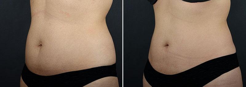 fat-transfer-buttocks-11361b-sobel