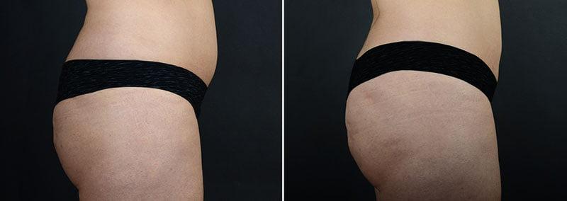 fat-transfer-buttocks-11361c-sobel