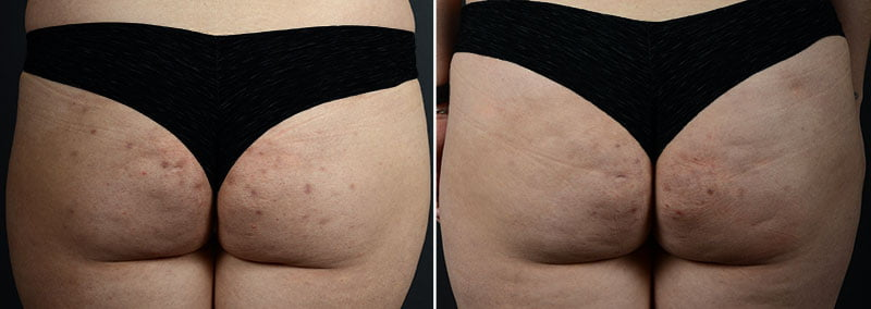 fat-transfer-buttocks-11361d-sobel