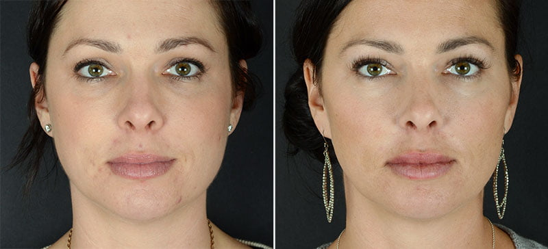 injectable-fillers-volbella-lips-11382a-sobel