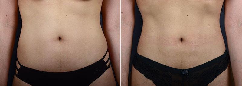 liposuction-abdomen-waist-hips-11347a-sobel