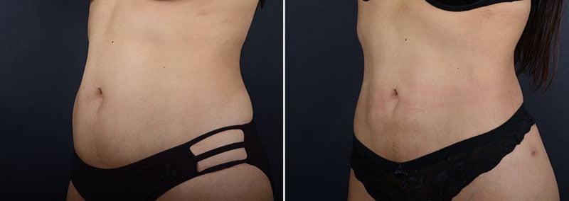 liposuction-abdomen-waist-hips-11347b-sobel