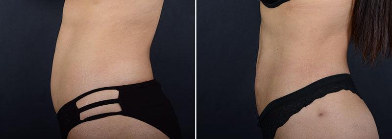 liposuction-abdomen-waist-hips-11347c-sobel