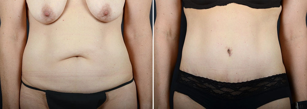 abdominoplasty-liposuction-11924a-sobel