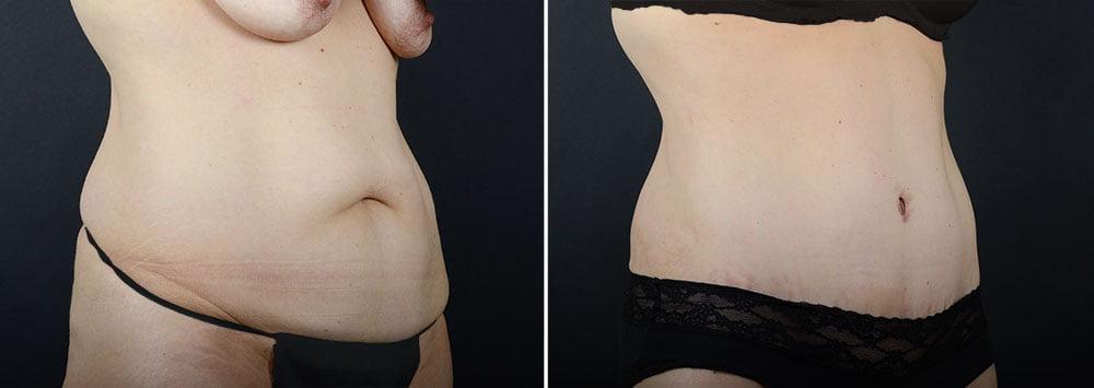 abdominoplasty-liposuction-11924b-sobel
