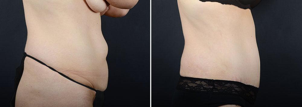abdominoplasty-liposuction-11924c-sobel