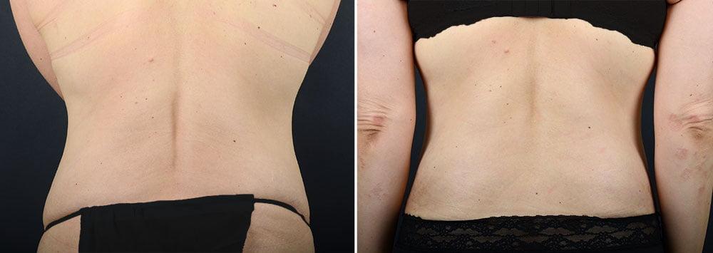 abdominoplasty-liposuction-11924d-sobel