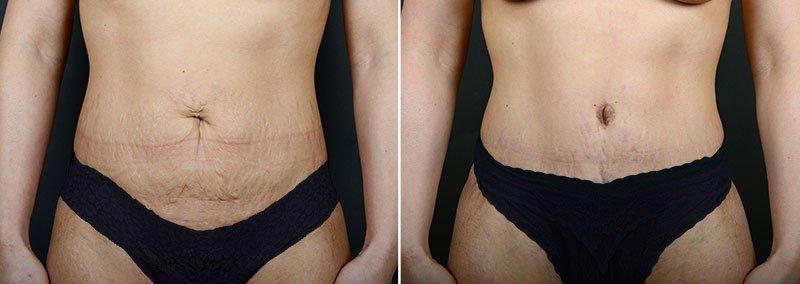 abdominoplasty-12183a-sobel