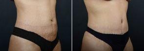 abdominoplasty-12183b-sobel