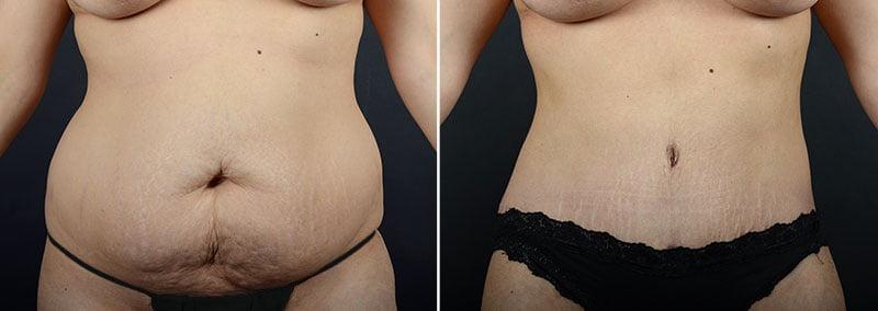 abdominoplasty-liposuction-12064a-sobel