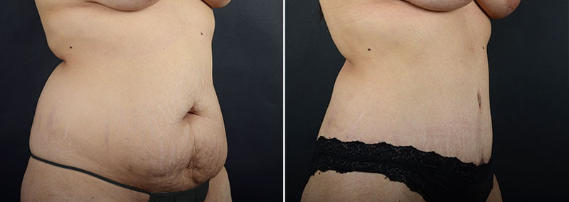 abdominoplasty-liposuction-12064b-sobel