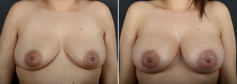 breast-augmentation-12064a-sobel