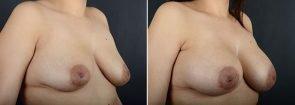 breast-augmentation-12064b-sobel