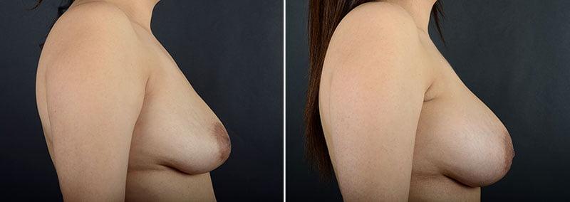 breast-augmentation-12064c-sobel
