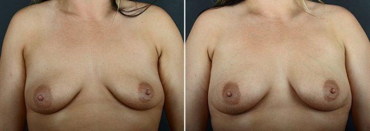 breast-augmentation-fat-transfer-12029a-sobel