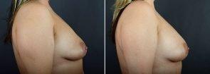 breast-augmentation-fat-transfer-12029c-sobel