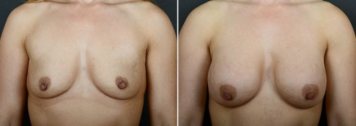 breast-lift-with-implants-12183a-sobel