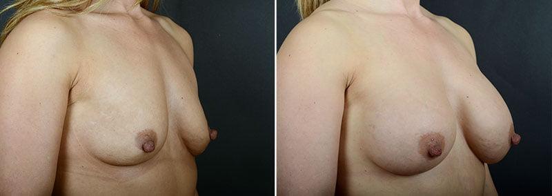 breast-lift-with-implants-12183b-sobel