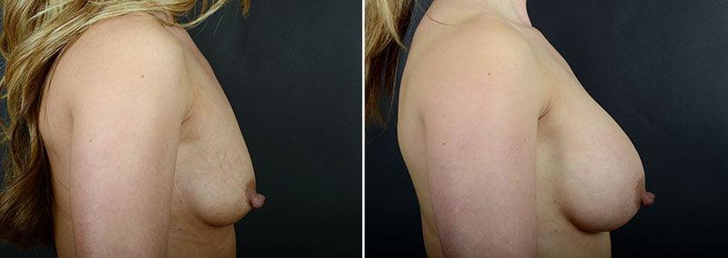 breast-lift-with-implants-12183c-sobel