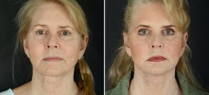 Facelift, Eyelid Lift, Brow Lift
