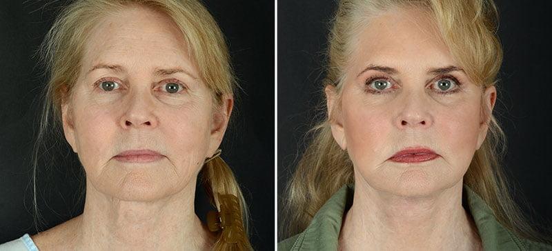 facelift-necklift-eyelids-browlift-11990a-sobel