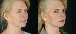 facelift-necklift-eyelids-browlift-11990b-sobel