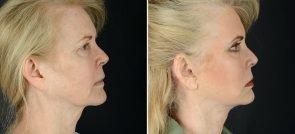 facelift-necklift-eyelids-browlift-11990c-sobel