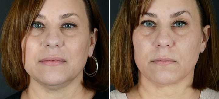 injectable-fillers-kybella-11966a-sobel