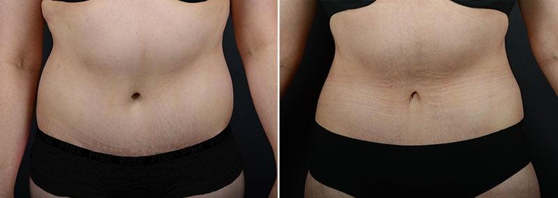 liposuction-fat-transfer-12133a-sobel