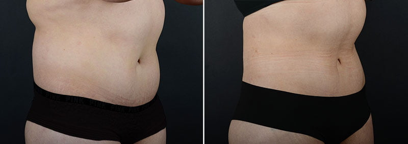 liposuction-fat-transfer-12133b-sobel
