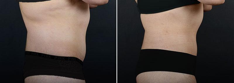liposuction-fat-transfer-12133c-sobel