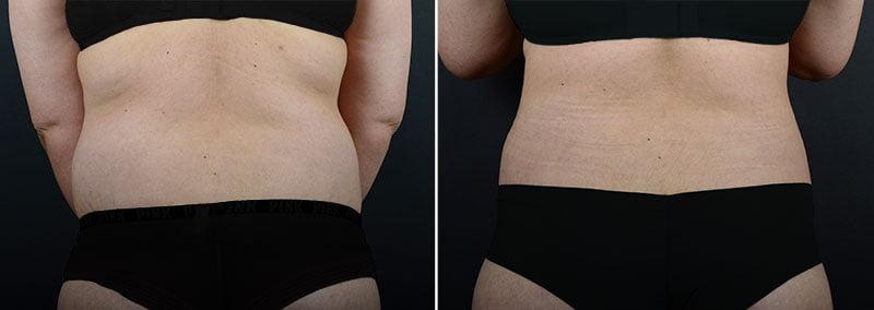 liposuction-fat-transfer-12133d-sobel