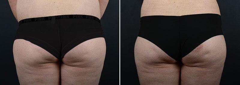 liposuction-fat-transfer-12133d2-sobel
