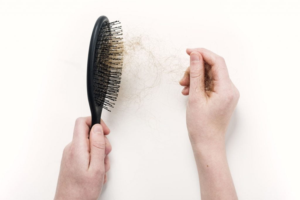 5 Questions You Have About Hair Loss