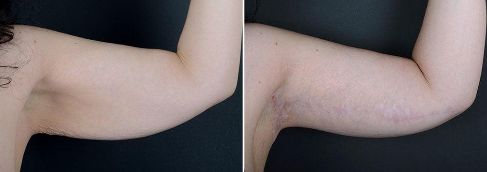 arm-lift-14702a-left-sobel
