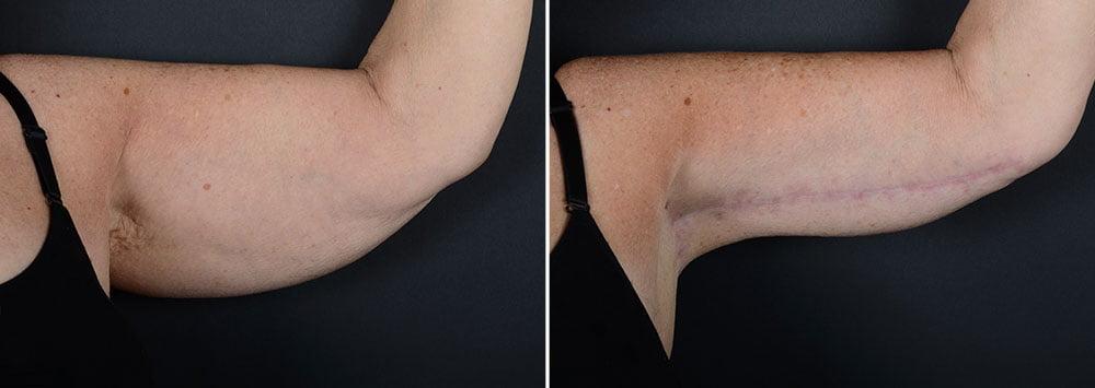 arm-lift-14844a-left-sobel