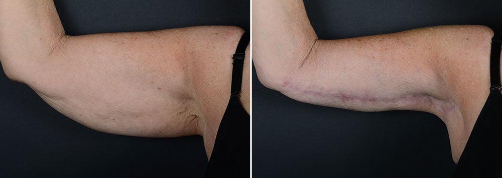 arm-lift-14844a-right-sobel