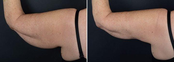 arm-lift-14844d-left-sobel