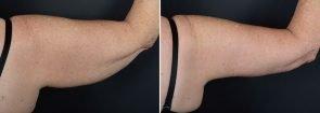 arm-lift-14844d-right-sobel