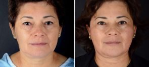 Facelift, Eyelid Lift, & Brow Lift