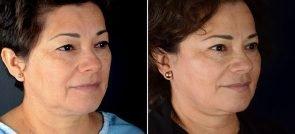 facelift-eyelid-brow-lift-16689b-sobel