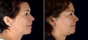facelift-eyelid-brow-lift-16689c-sobel