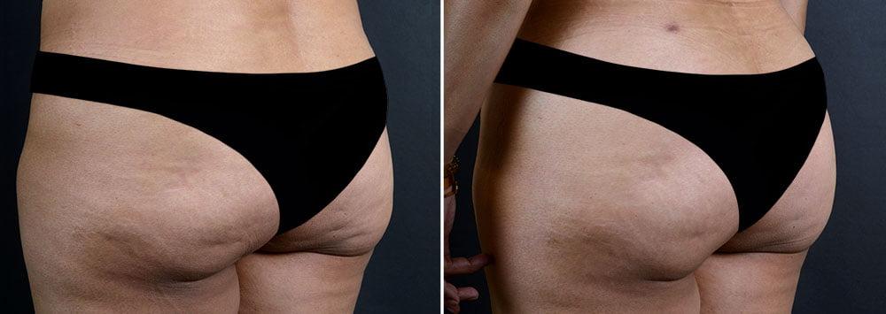 fat-transfer-buttocks-16737b-sobel