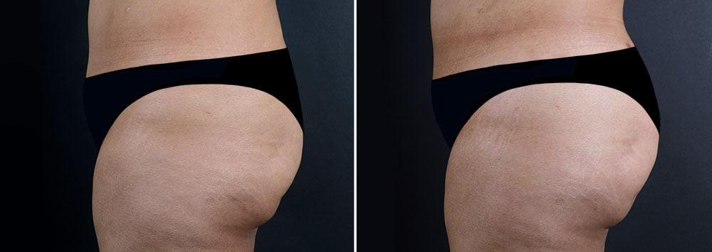 fat-transfer-buttocks-16737c-sobel