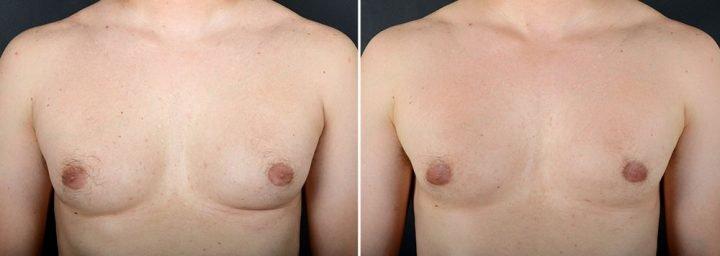 gynecomastia-16704a-sobel